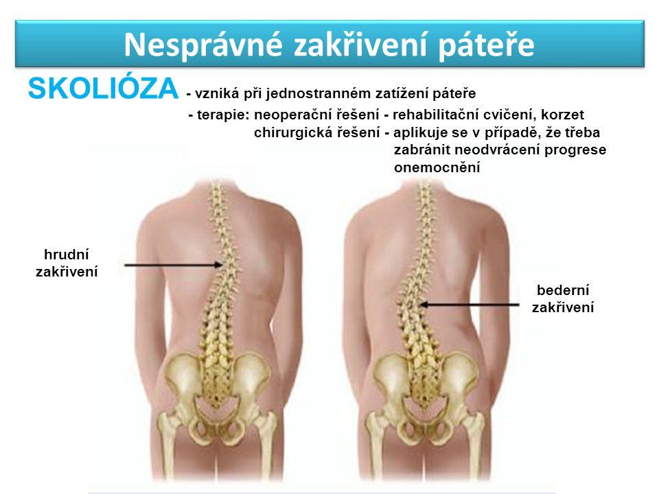 Nesprávné zakřivení páteře hrudní zakřivení bederní zakřivení SKOLIÓZA - vzniká při jednostranném zatížení páteře - terapie: neoperační řešení - rehab