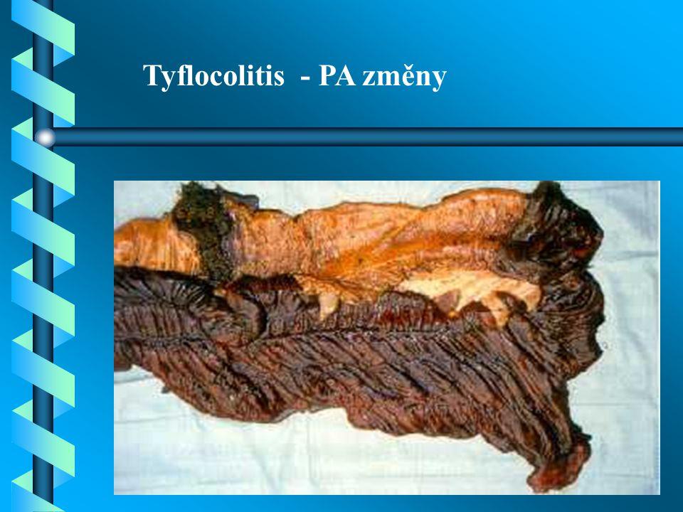 Tyflocolitis - PA změny