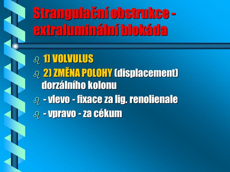 Strangulační obstrukce - extraluminální blokáda b 1) VOLVULUS b 2) ZMĚNA POLOHY (displacement) dorzálního kolonu b - vlevo - fixace za lig. renolienal
