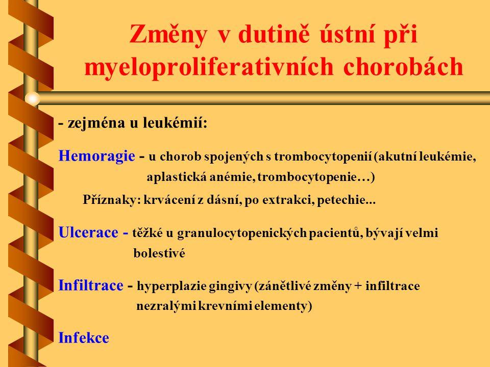 Změny v dutině ústní při myeloproliferativních chorobách - zejména u leukémií: Hemoragie - u chorob spojených s trombocytopenií (akutní leukémie, apla