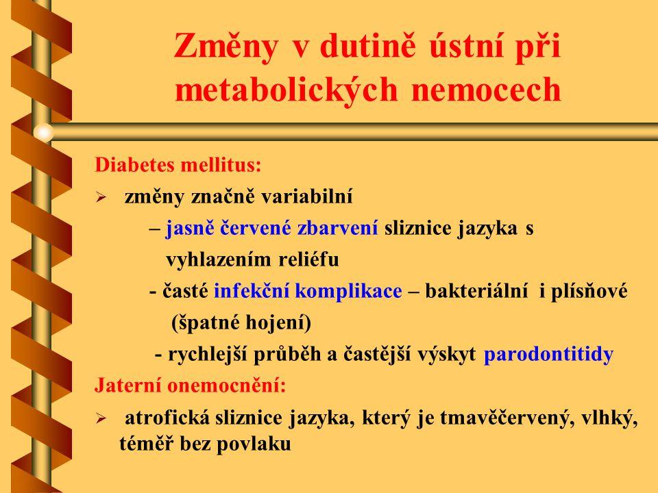 Změny v dutině ústní při metabolických nemocech Diabetes mellitus:   změny značně variabilní – jasně červené zbarvení sliznice jazyka s vyhlazením r