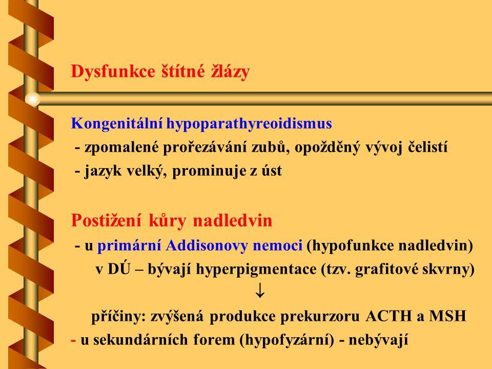 Dysfunkce štítné žlázy Kongenitální hypoparathyreoidismus - zpomalené prořezávání zubů, opožděný vývoj čelistí - jazyk velký, prominuje z úst Postižen