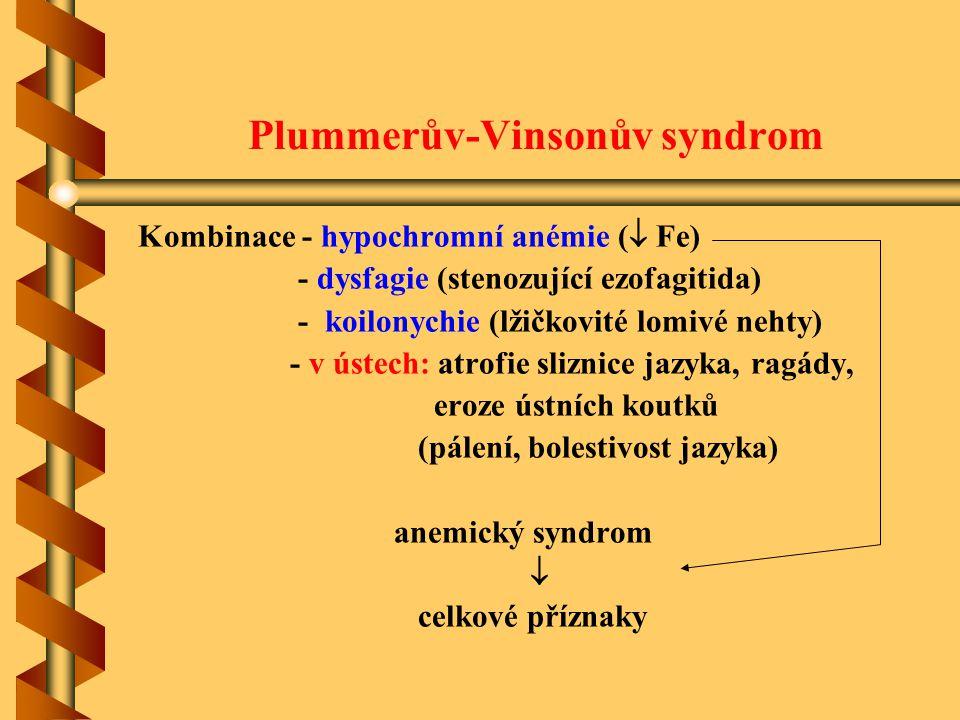 Plummerův-Vinsonův syndrom Kombinace - hypochromní anémie (  Fe) - dysfagie (stenozující ezofagitida) - koilonychie (lžičkovité lomivé nehty) - v úst