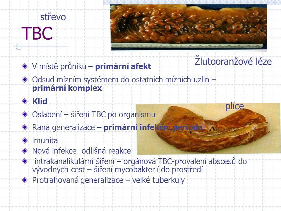TBC V místě průniku – primární afekt Odsud mízním systémem do ostatních mízních uzlin – primární komplex Klid Oslabení – šíření TBC po organismu Raná