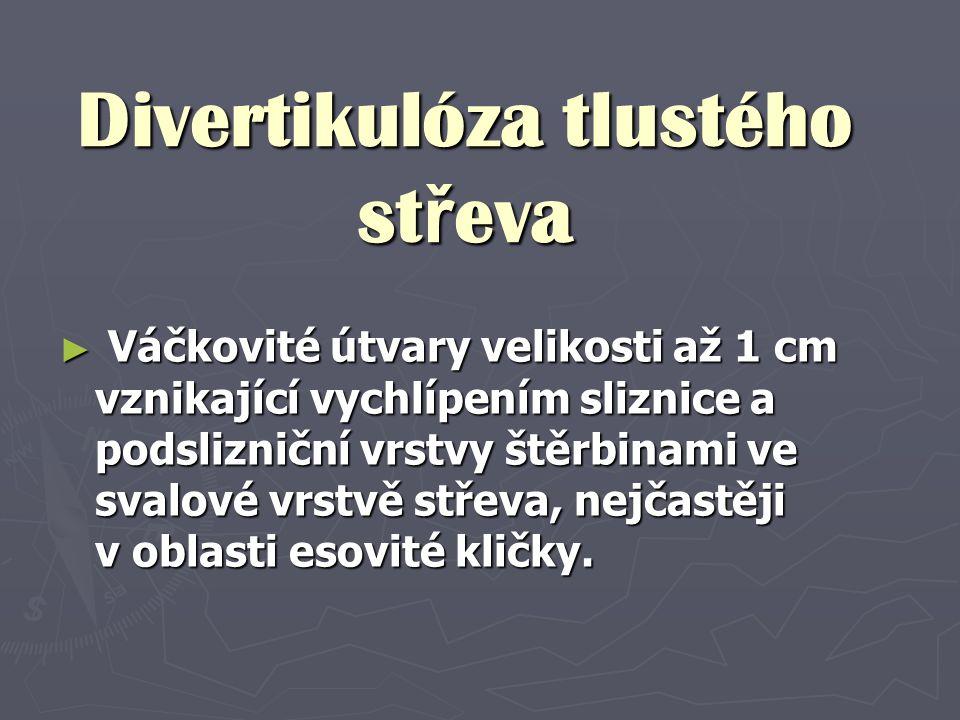 Divertikulóza tlustého st ř eva ► Váčkovité útvary velikosti až 1 cm vznikající vychlípením sliznice a podslizniční vrstvy štěrbinami ve svalové vrstv