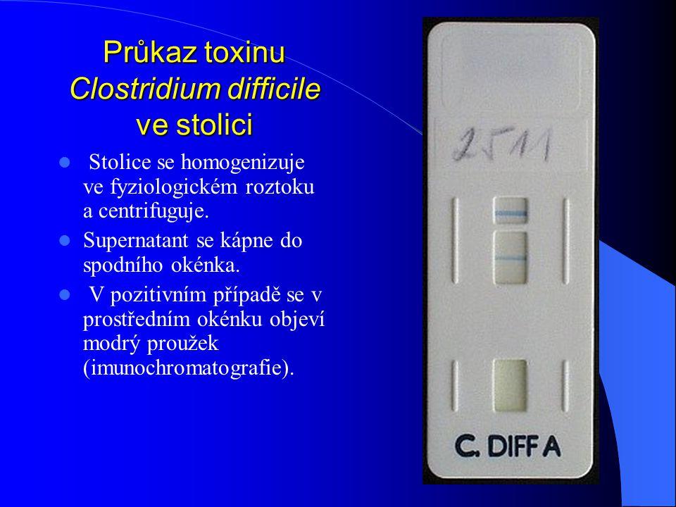 Průkaz toxinu Clostridium difficile ve stolici Stolice se homogenizuje ve fyziologickém roztoku a centrifuguje. Supernatant se kápne do spodního okénk