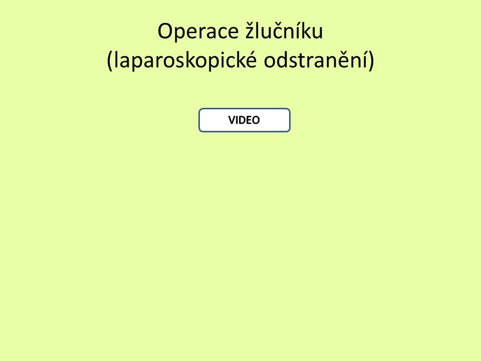 Operace žlučníku (laparoskopické odstranění)