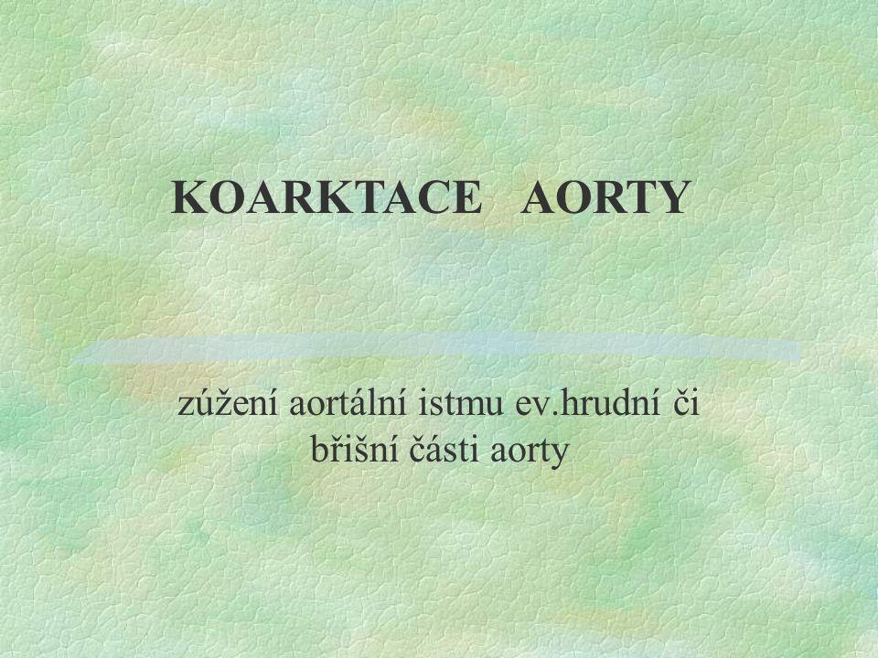zúžení aortální istmu ev.hrudní či břišní části aorty KOARKTACE AORTY