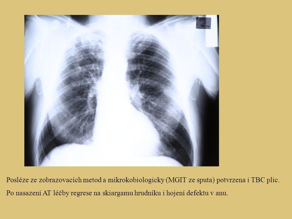Posléze ze zobrazovacích metod a mikrokobiologicky (MGIT ze sputa) potvrzena i TBC plic. Po nasazení AT léčby regrese na skiargamu hrudníku i hojení d