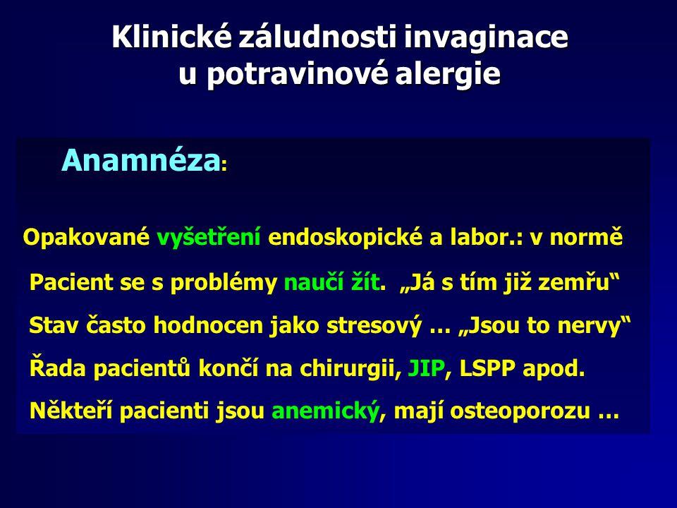 """Anamnéza : Opakované vyšetření endoskopické a labor.: v normě Pacient se s problémy naučí žít. """"Já s tím již zemřu"""" Stav často hodnocen jako stresový"""