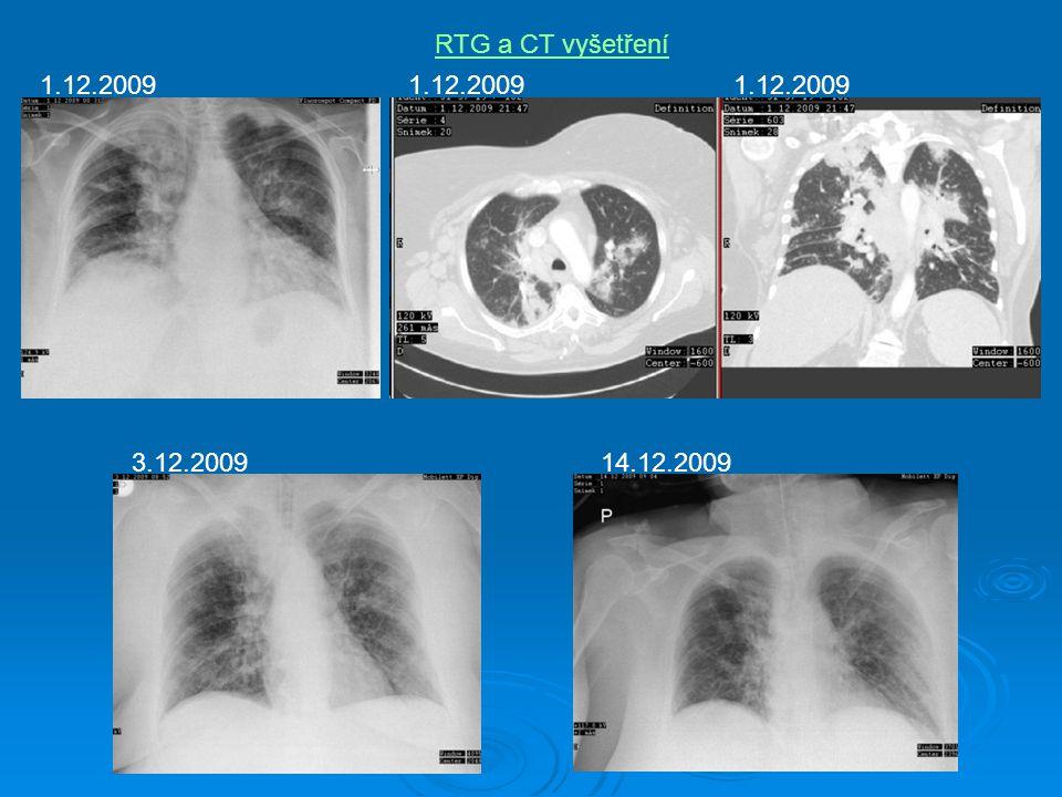 RTG a CT vyšetření 1.12.2009 3.12.200914.12.2009