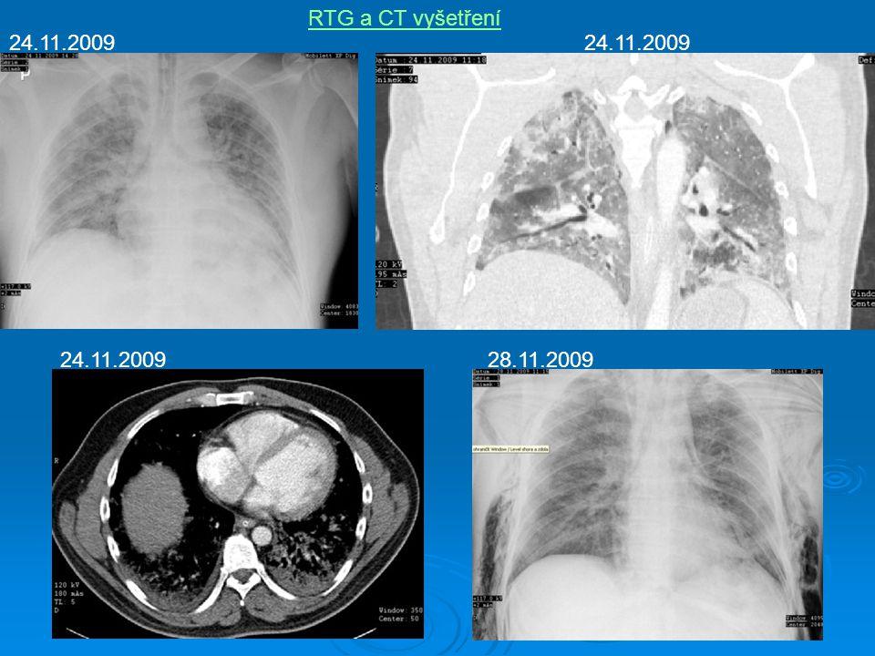 RTG a CT vyšetření 24.11.2009 28.11.2009