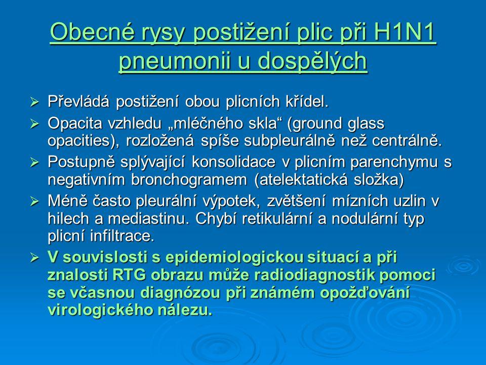 """Obecné rysy postižení plic při H1N1 pneumonii u dospělých  Převládá postižení obou plicních křídel.  Opacita vzhledu """"mléčného skla"""" (ground glass o"""