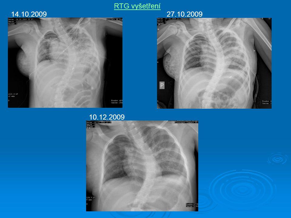 RTG vyšetření 14.10.200927.10.2009 10.12.2009