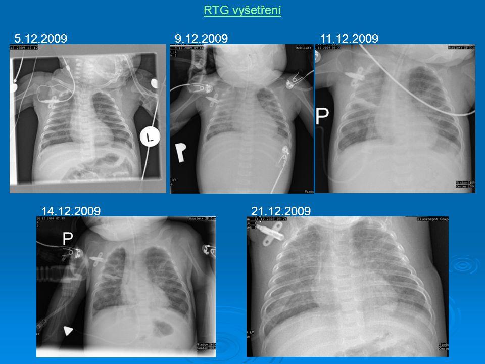 RTG vyšetření 5.12.20099.12.200911.12.2009 14.12.200921.12.2009