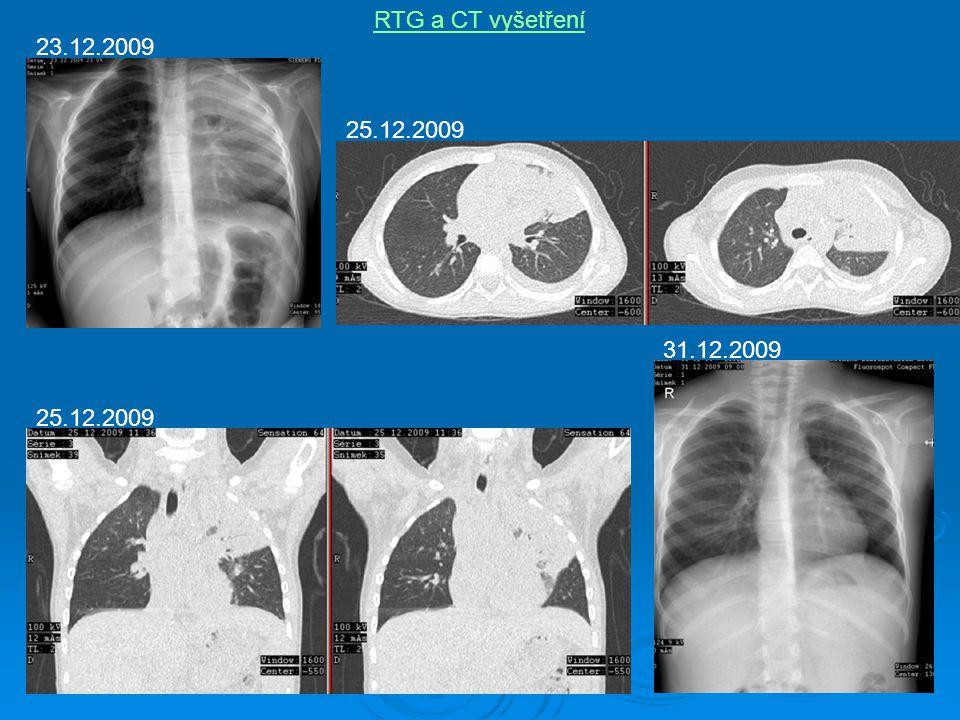 RTG a CT vyšetření 23.12.2009 25.12.2009 31.12.2009