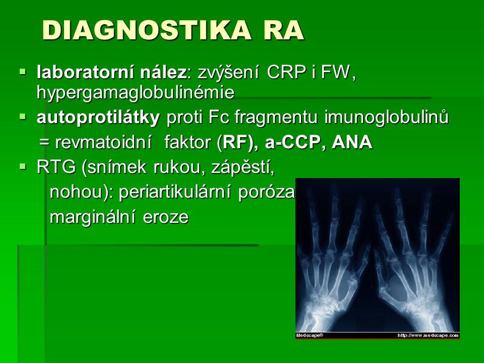 DIAGNOSTIKA RA  laboratorní nález: zvýšení CRP i FW, hypergamaglobulinémie  autoprotilátky proti Fc fragmentu imunoglobulinů = revmatoidní faktor (RF), a-CCP, ANA = revmatoidní faktor (RF), a-CCP, ANA  RTG (snímek rukou, zápěstí, nohou): periartikulární poróza nohou): periartikulární poróza marginální eroze marginální eroze