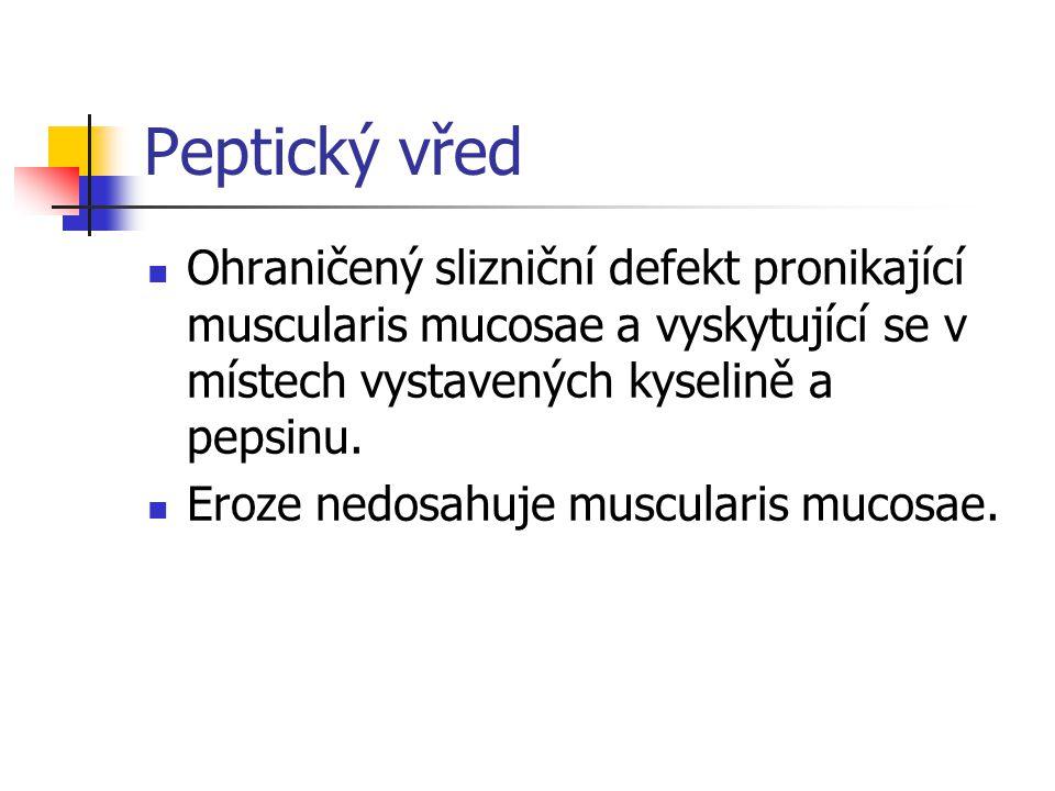 Peptický vřed Ohraničený slizniční defekt pronikající muscularis mucosae a vyskytující se v místech vystavených kyselině a pepsinu. Eroze nedosahuje m