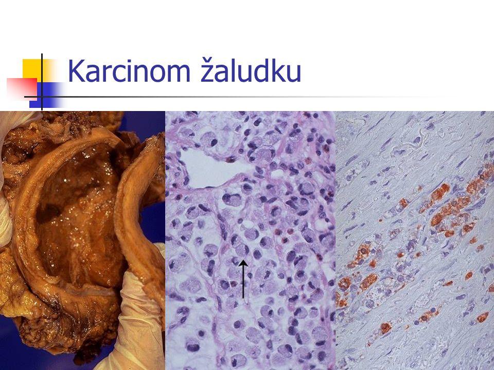 Karcinom žaludku