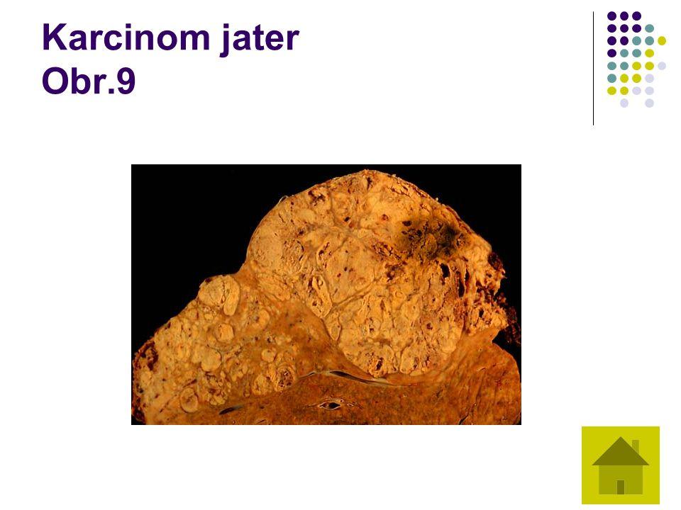 Karcinom jater Obr.9