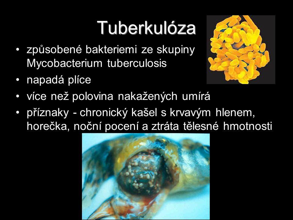 Tuberkulóza způsobené bakteriemi ze skupiny Mycobacterium tuberculosis napadá plíce více než polovina nakažených umírá příznaky - chronický kašel s kr