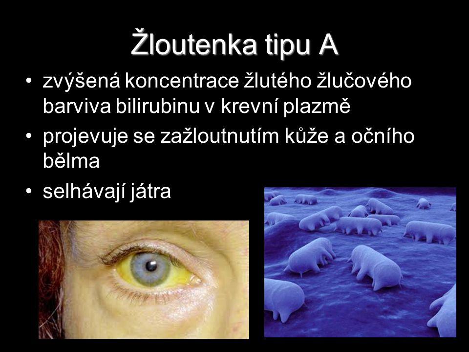 Žloutenka tipu A zvýšená koncentrace žlutého žlučového barviva bilirubinu v krevní plazmě projevuje se zažloutnutím kůže a očního bělma selhávají játr