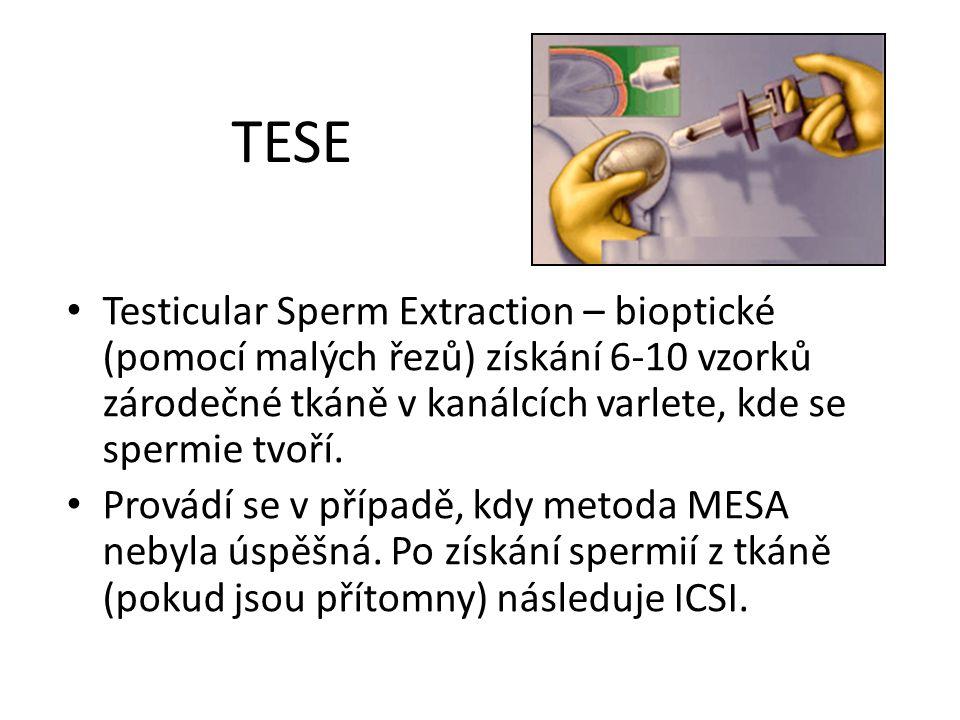 TESE Testicular Sperm Extraction – bioptické (pomocí malých řezů) získání 6-10 vzorků zárodečné tkáně v kanálcích varlete, kde se spermie tvoří. Prová