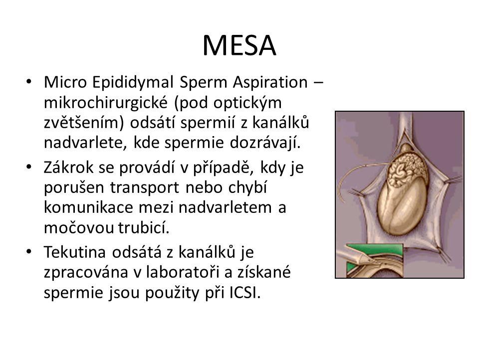 MESA Micro Epididymal Sperm Aspiration – mikrochirurgické (pod optickým zvětšením) odsátí spermií z kanálků nadvarlete, kde spermie dozrávají. Zákrok