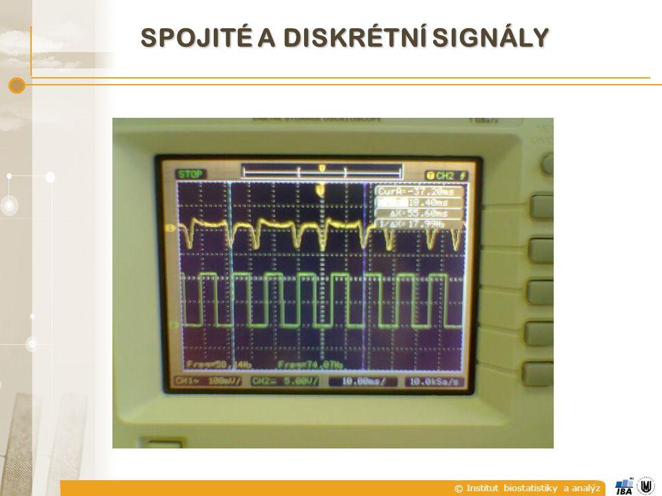 © Institut biostatistiky a analýz SPOJITÉ A DISKRÉTNÍ SIGNÁLY  U diskrétního signálu není hodnota signálu mezi jednotlivými diskrétními časovými okamžiky definována.