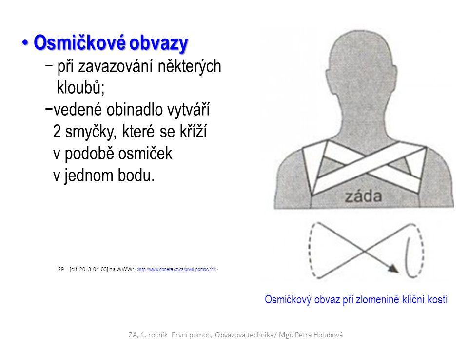 Osmičkové obvazy Osmičkové obvazy − při zavazování některých kloubů; −vedené obinadlo vytváří 2 smyčky, které se kříží v podobě osmiček v jednom bodu.