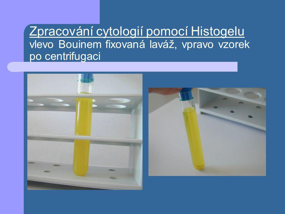 Zpracování cytologií pomocí Histogelu vlevo Bouinem fixovaná laváž, vpravo vzorek po centrifugaci