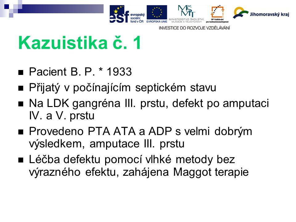 Kazuistika č.1 Pacient B. P. * 1933 Přijatý v počínajícím septickém stavu Na LDK gangréna III.