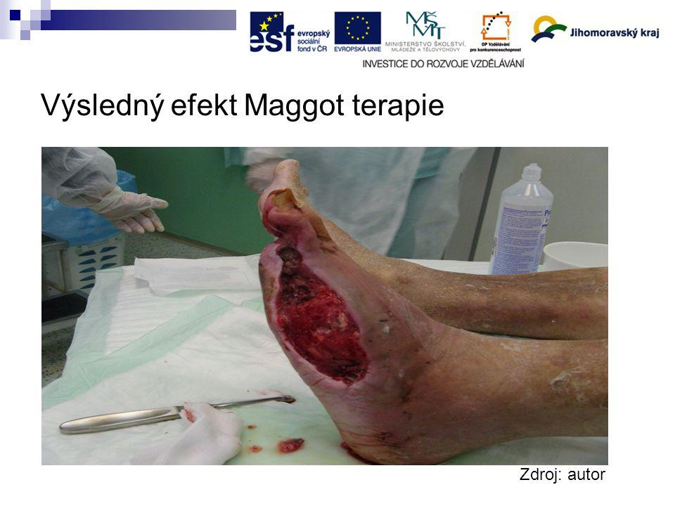 Výsledný efekt Maggot terapie Zdroj: autor