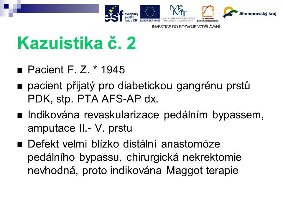 Kazuistika č.2 Pacient F. Z. * 1945 pacient přijatý pro diabetickou gangrénu prstů PDK, stp.