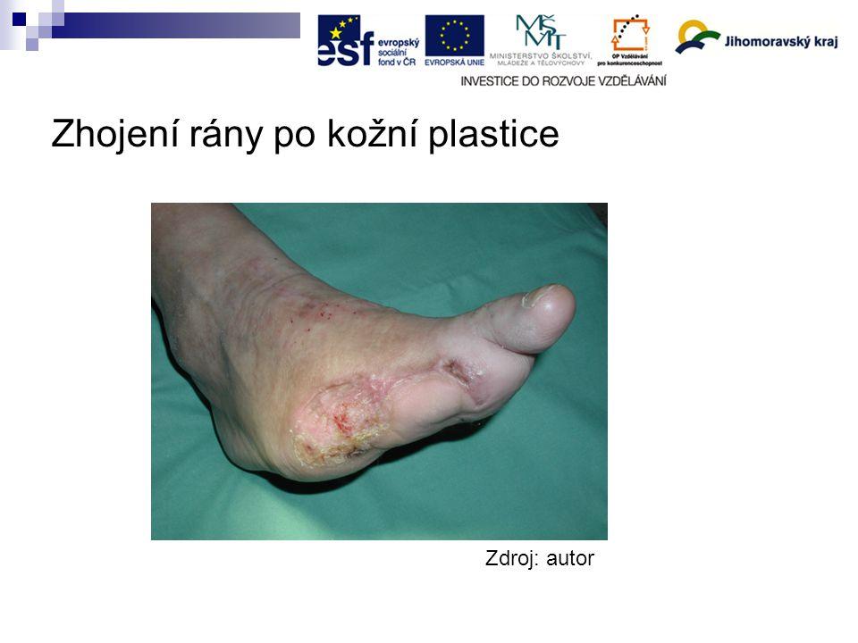 Zhojení rány po kožní plastice Zdroj: autor