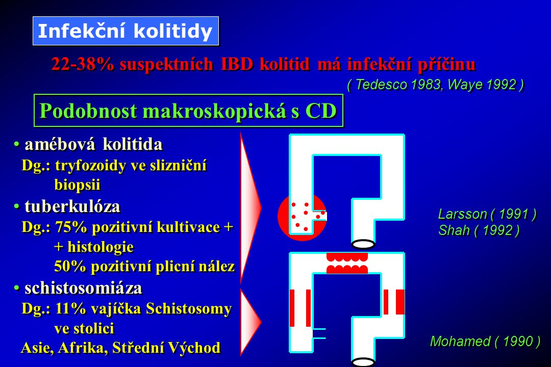 22-38% suspektních IBD kolitid má infekční příčinu ( Tedesco 1983, Waye 1992 ) Podobnost makroskopická s CD Infekční kolitidy amébová kolitida Dg.: tryfozoidy ve slizniční biopsii tuberkulóza Dg.: 75% pozitivní kultivace + + histologie 50% pozitivní plicní nález schistosomiáza Dg.: 11% vajíčka Schistosomy ve stolici Asie, Afrika, Střední Východ amébová kolitida Dg.: tryfozoidy ve slizniční biopsii tuberkulóza Dg.: 75% pozitivní kultivace + + histologie 50% pozitivní plicní nález schistosomiáza Dg.: 11% vajíčka Schistosomy ve stolici Asie, Afrika, Střední Východ Larsson ( 1991 ) Shah ( 1992 ) Larsson ( 1991 ) Shah ( 1992 ) Mohamed ( 1990 )