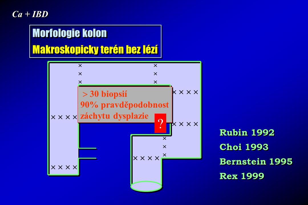 Ca + IBD Morfologie kolon Makroskopicky terén bez lézí Morfologie kolon Makroskopicky terén bez lézí                                        30 biopsií 90% pravděpodobnost záchytu dysplazie  30 biopsií 90% pravděpodobnost záchytu dysplazie Rubin 1992 Choi 1993 Bernstein 1995 Rex 1999 Rubin 1992 Choi 1993 Bernstein 1995 Rex 1999 ?