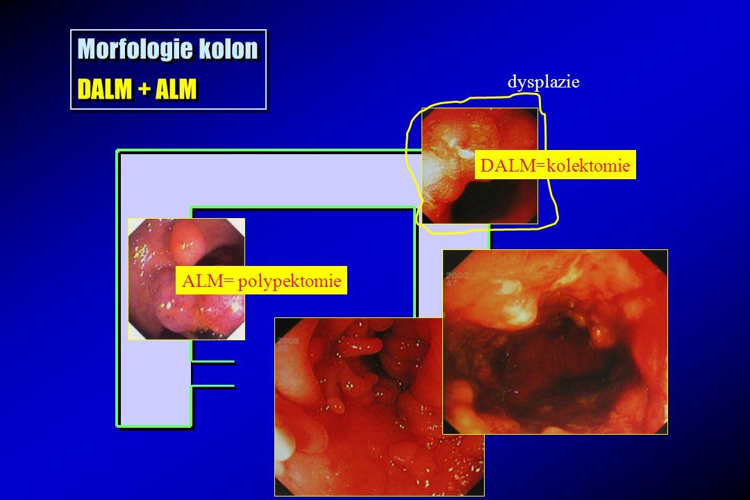 Morfologie kolon DALM + ALM Morfologie kolon DALM + ALM CrCa ?! DALM=kolektomie dysplazie ALM= polypektomie