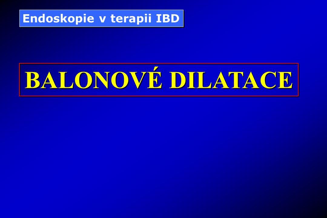 Endoskopie v terapii IBD BALONOVÉ DILATACE