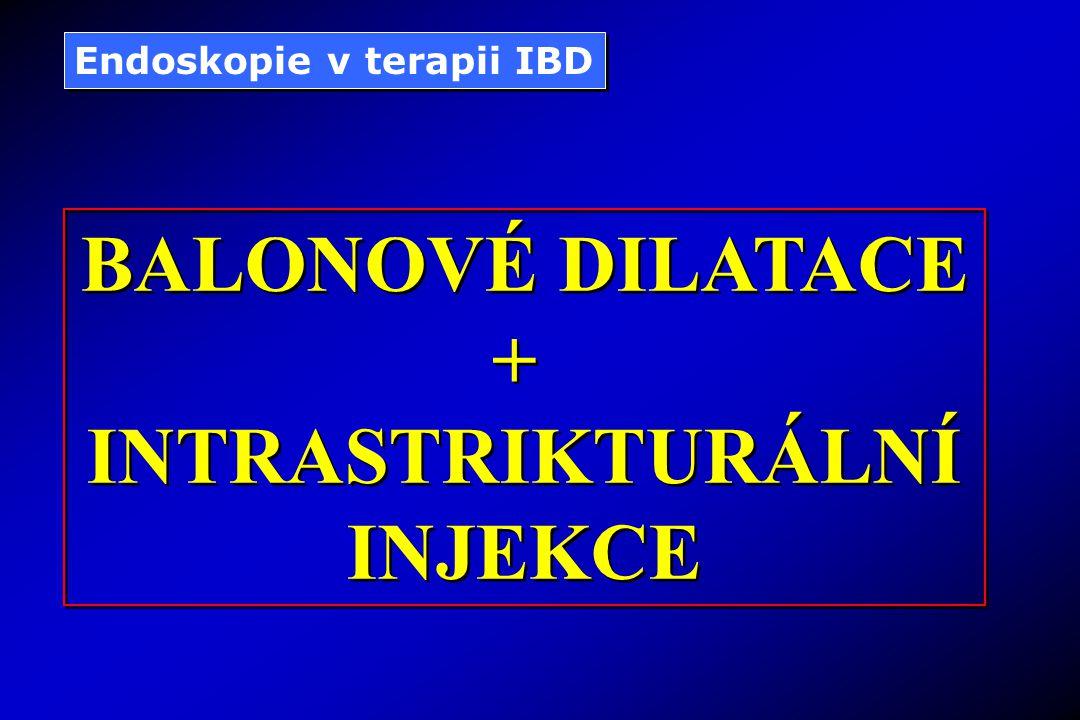 Endoskopie v terapii IBD BALONOVÉ DILATACE + INTRASTRIKTURÁLNÍ INJEKCE BALONOVÉ DILATACE + INTRASTRIKTURÁLNÍ INJEKCE