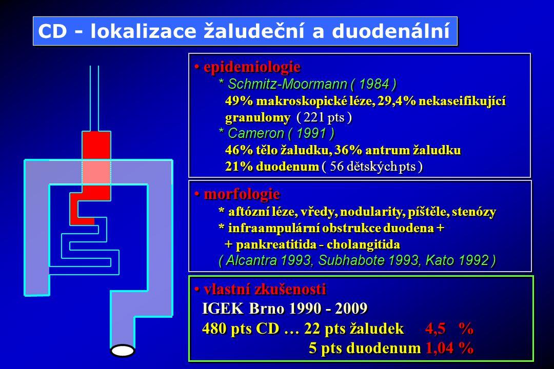 vlastní zkušenosti IGEK Brno 1990 - 2009 480 pts CD … 64 pts samostatně lačník 13,3 % 72 pts lačník + další GIT 15,0 % vlastní zkušenosti IGEK Brno 1990 - 2009 480 pts CD … 64 pts samostatně lačník 13,3 % 72 pts lačník + další GIT 15,0 % CD - lokalizace lačníková epidemiologie *Subhabote (1993) * 40% ileocaecum *Eliakim ( 1987 ) * vždy při orální lokalizaci *Kato ( 1992 ) * 28 - 30% samostatně lačník epidemiologie *Subhabote (1993) * 40% ileocaecum *Eliakim ( 1987 ) * vždy při orální lokalizaci *Kato ( 1992 ) * 28 - 30% samostatně lačník morfologie aftózní léze, vředy, hrubé granulace,stenózy, píštěle morfologie aftózní léze, vředy, hrubé granulace,stenózy, píštěle