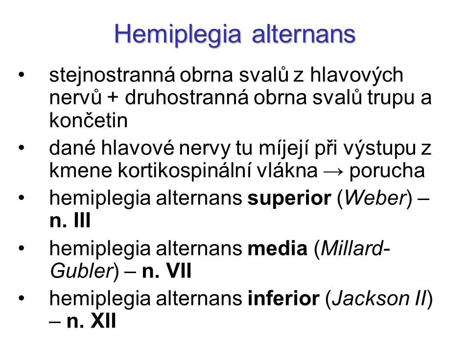 Hemiplegia alternans stejnostranná obrna svalů z hlavových nervů + druhostranná obrna svalů trupu a končetin dané hlavové nervy tu míjejí při výstupu