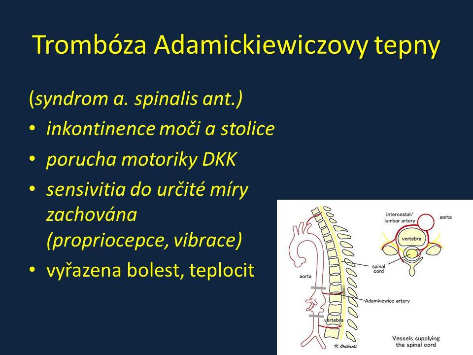 Trombóza Adamickiewiczovy tepny (syndrom a. spinalis ant.) inkontinence moči a stolice porucha motoriky DKK sensivitia do určité míry zachována (propr
