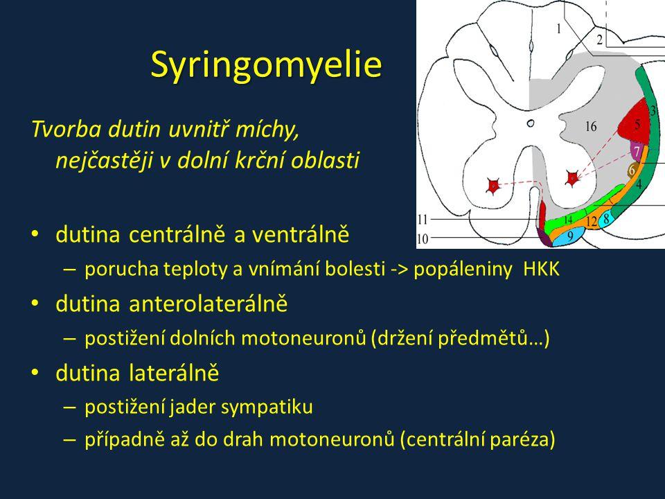 Syringomyelie Tvorba dutin uvnitř míchy, nejčastěji v dolní krční oblasti dutina centrálně a ventrálně – porucha teploty a vnímání bolesti -> popáleni