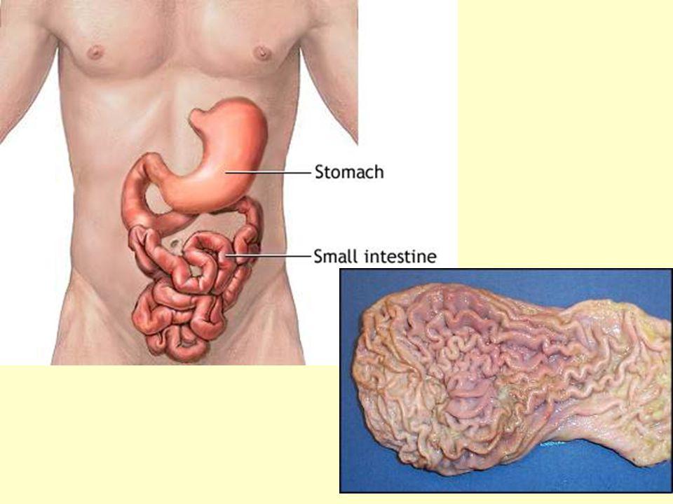 Trávicí soustava sousto polykacím reflexem do hltanu-----jícnu----žaludku Žaludek (Gaster): tvar hrušky, horní část dutiny břišní pohyb potravy - hladké svalstvo = peristaltika funkce: zásobník – přijatá potrava přeměněna na kašovitou hmotu = trávenina vylučování žaludečních šťáv – enzym pepsin (štěpí bílkoviny) HCl – ničí choroboplodné, aktivuje enzymy