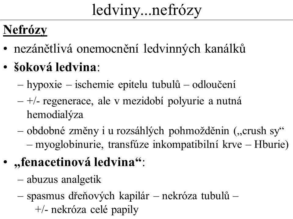 """ledviny...nefrózy Nefrózy nezánětlivá onemocnění ledvinných kanálků šoková ledvina: –hypoxie – ischemie epitelu tubulů – odloučení –+/- regenerace, ale v mezidobí polyurie a nutná hemodialýza –obdobné změny i u rozsáhlých pohmožděnin (""""crush sy – myoglobinurie, transfúze inkompatibilní krve – Hburie) """"fenacetinová ledvina : –abuzus analgetik –spasmus dřeňových kapilár – nekróza tubulů – +/- nekróza celé papily"""