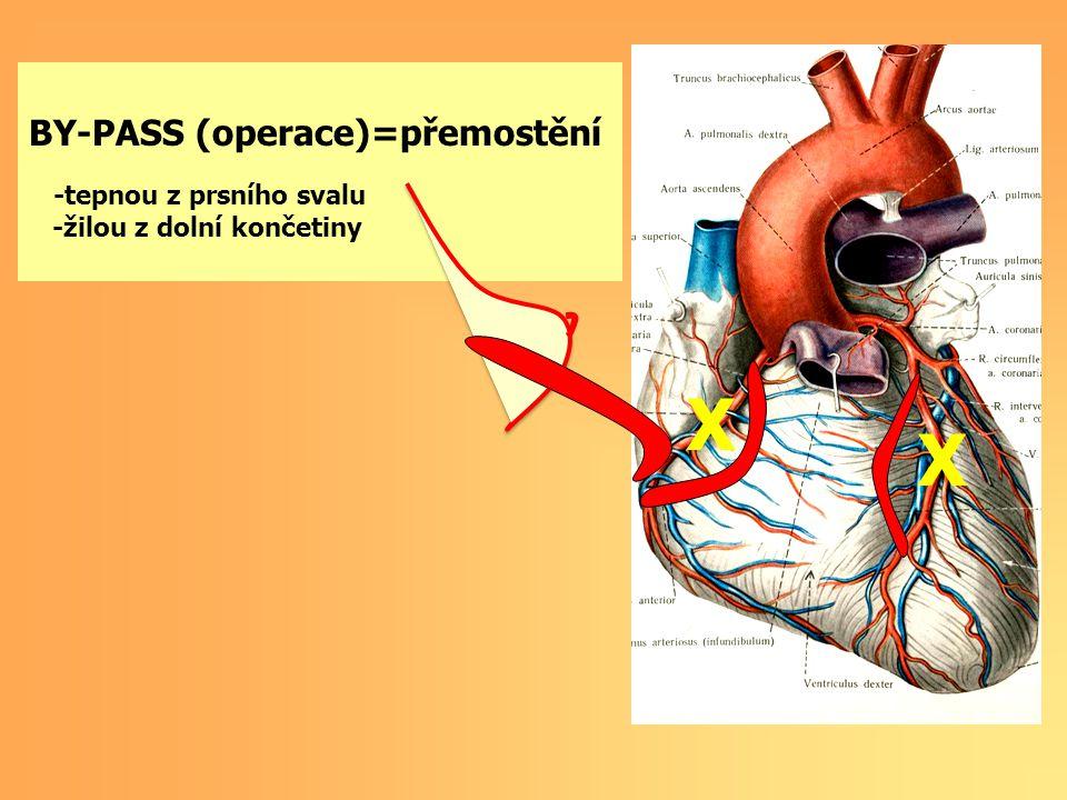 BY-PASS, STENT X X BY-PASS (operace)=přemostění -tepnou z prsního svalu -žilou z dolní končetiny