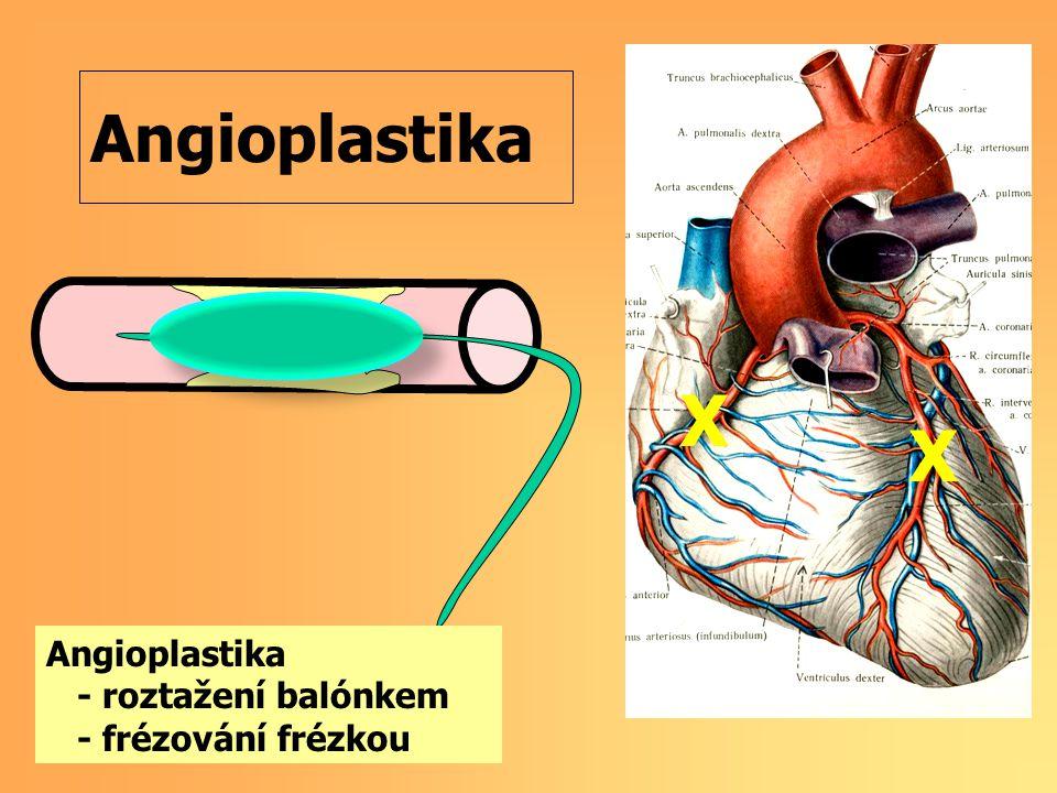 Angioplastika X X - roztažení balónkem - frézování frézkou