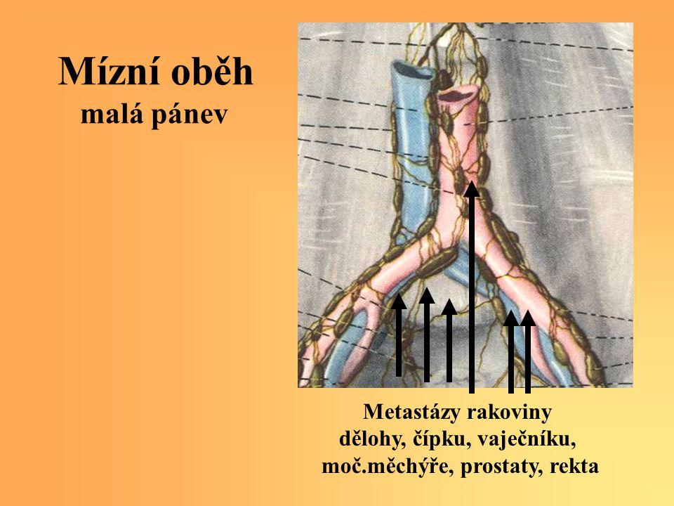 Mízní oběh malá pánev Metastázy rakoviny dělohy, čípku, vaječníku, moč.měchýře, prostaty, rekta