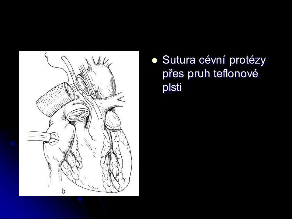 Sutura cévní protézy přes pruh teflonové plsti Sutura cévní protézy přes pruh teflonové plsti